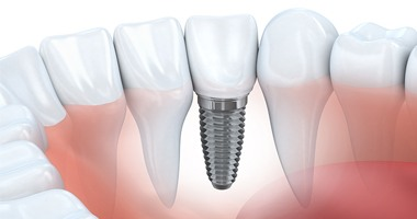 an image of a dental implant