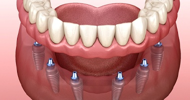 An image of implant dentures