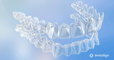 Example of an Invisalign aligner