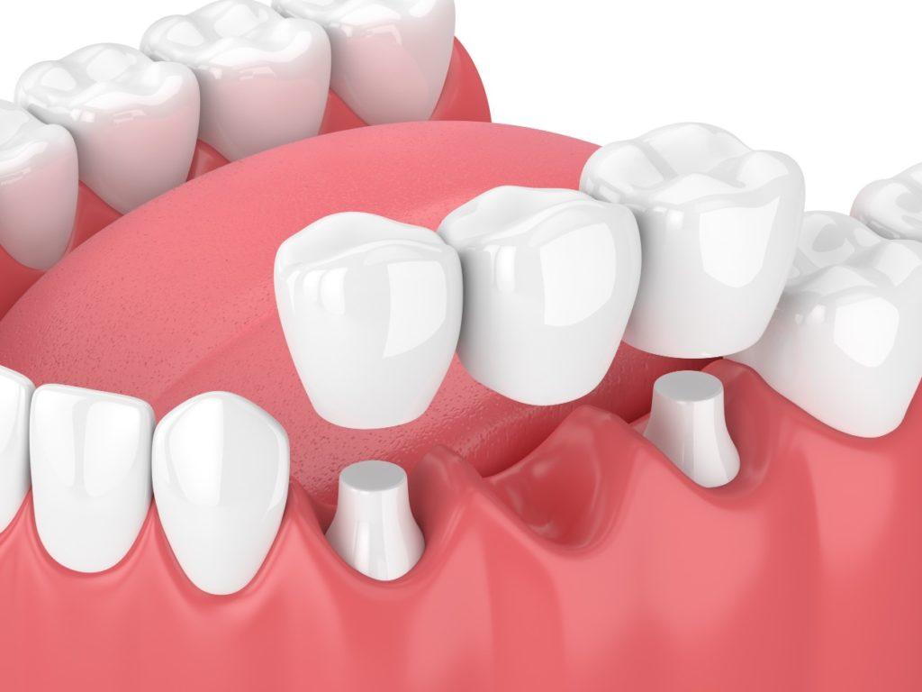 3D digital image of a dental bridge from a dentist in Medford