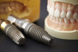 dental implants next to set of full dentures