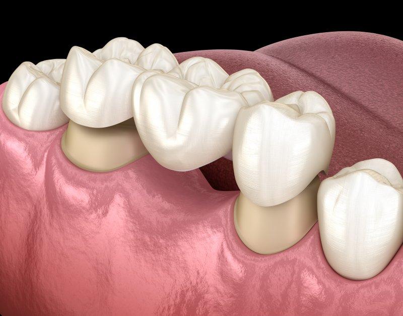 a dental bridge on the lower arch